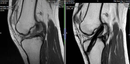 Anterior Cruciate Ligament Reconstruction