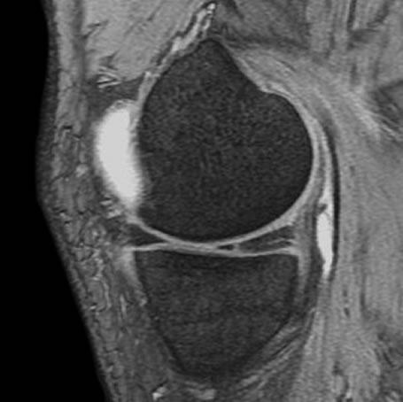 Arthroscopic Meniscectomy