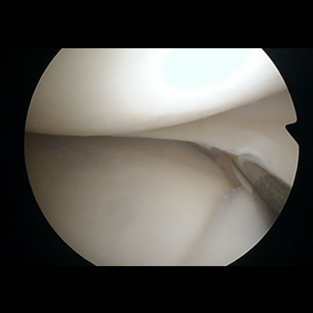 Cartilage within the knee joint