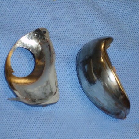 Failed Total Knee Replacement