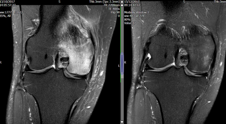 Medical Imaging of the Knee