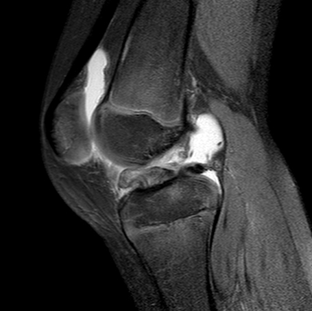 Knee Injuries in Children and Adolescents